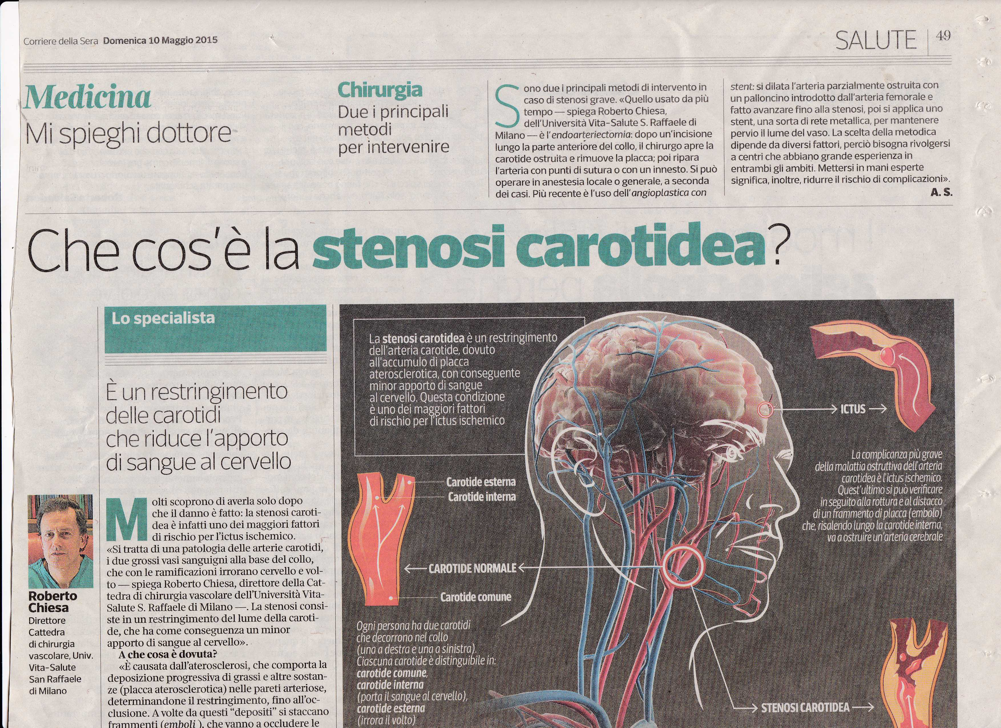 stenosi carotidea2136