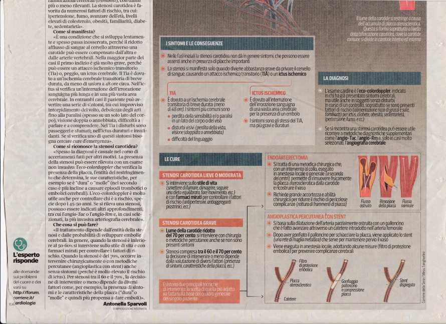 stenosi carotidea2137